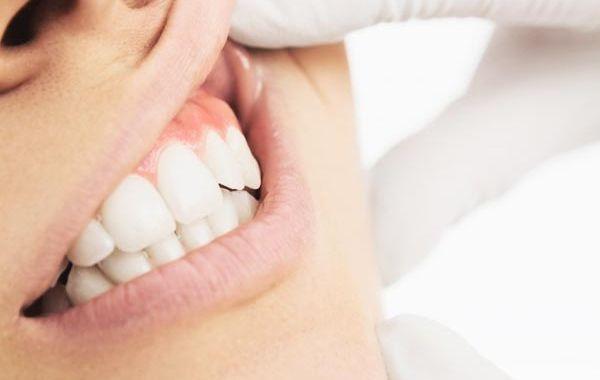 bio parodontologia