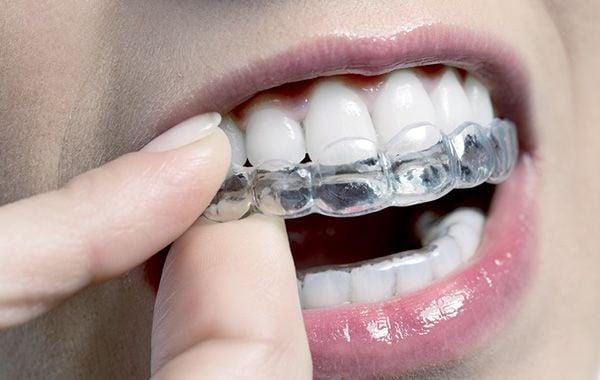 ortodonzia biocompatible