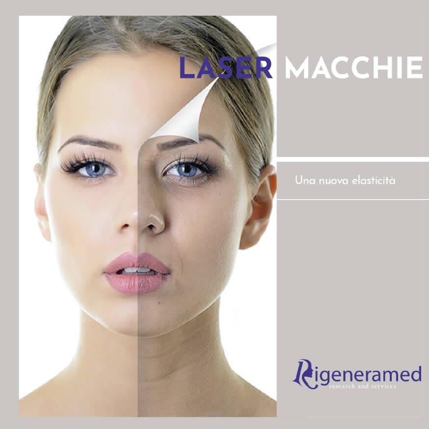trattamento laser per le macchie del viso Biomedic Clinic & Research