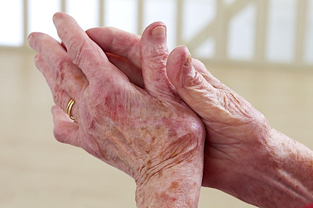 artrosi alle mani Biomedic Clinic & Research