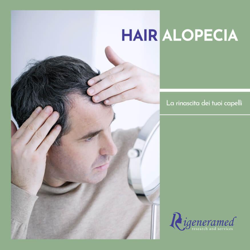 hair alopecia trattamento dell'alopecia trattamenti di medicina estetica Biomedic Clinic & Research