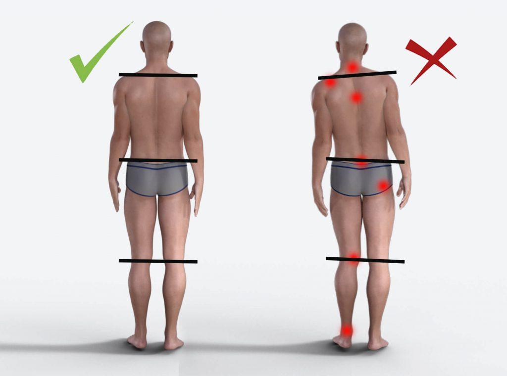 la postura scorretta causa una serie di dolori articolari e muscolari