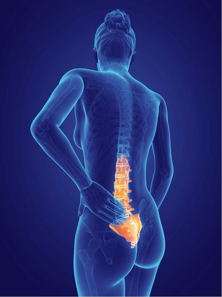 trattare il mal di schiena nella parte bassa con la postura